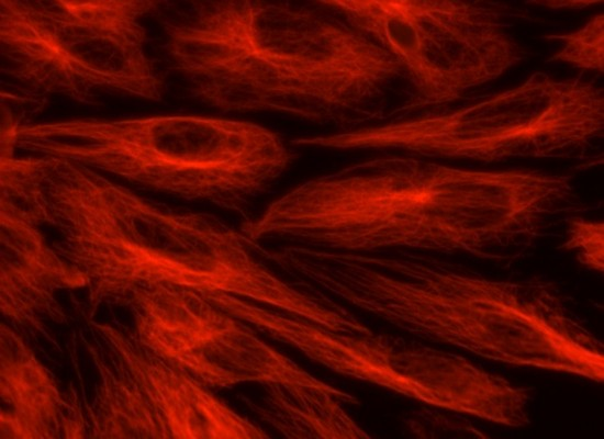 Cellular Forces: Some Biophysics in Simple Words